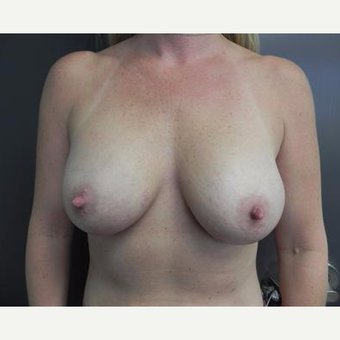 25-34 year old woman treated with Breast Augmentation after 3378487