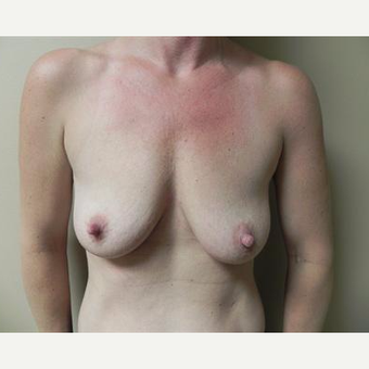 25-34 year old woman treated with Breast Augmentation before 3378487