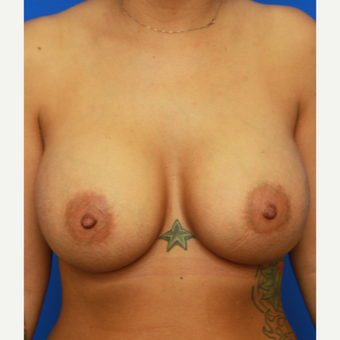31- year old woman treated with Breast Implants after 3400609