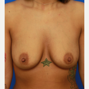 31- year old woman treated with Breast Implants before 3400609