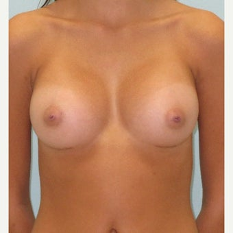 18-24 year old woman treated with Breast Augmentation after 1665270