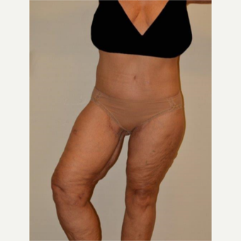 55-64 year old woman treated with Thigh Lift after 3659675