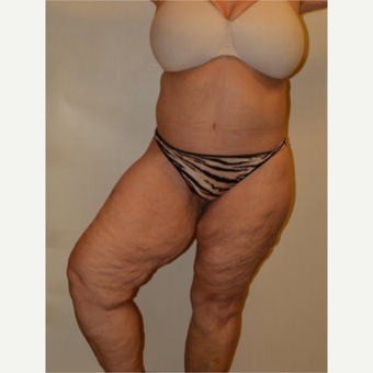 55-64 year old woman treated with Thigh Lift before 3659675
