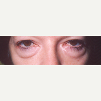 45-54 year old woman treated with Eye Bags Treatment before 3544829