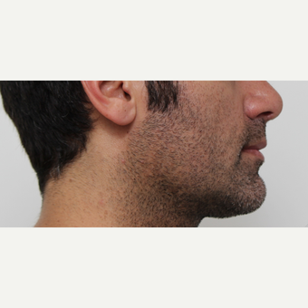 35-44 year old man treated with Chin Liposuction after 2746404