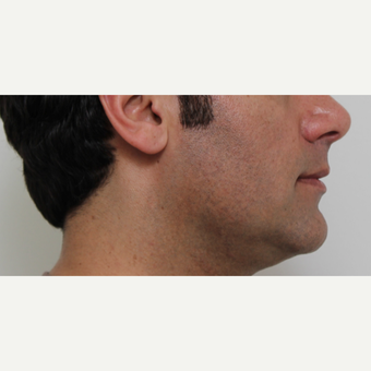 35-44 year old man treated with Chin Liposuction before 2746404