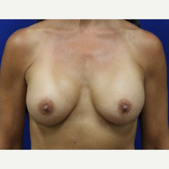 55-64 year old woman treated with Breast Augmentation after 3333033