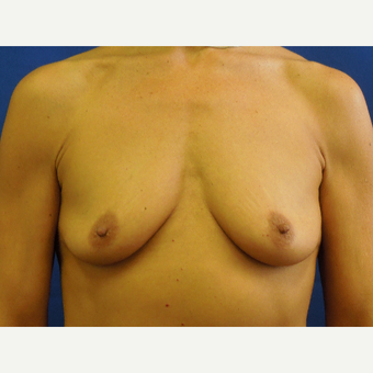 55-64 year old woman treated with Breast Augmentation before 3333033