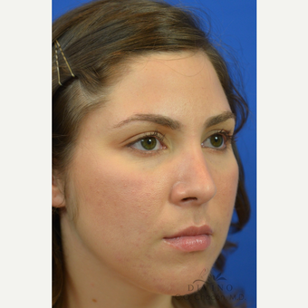 25-34 year old woman treated with Rhinoplasty after 3391928