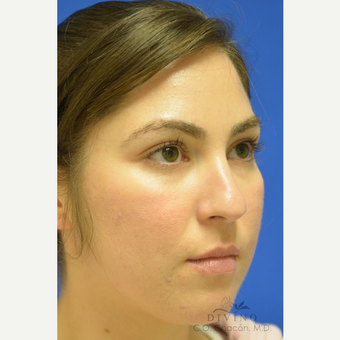 25-34 year old woman treated with Rhinoplasty before 3391928