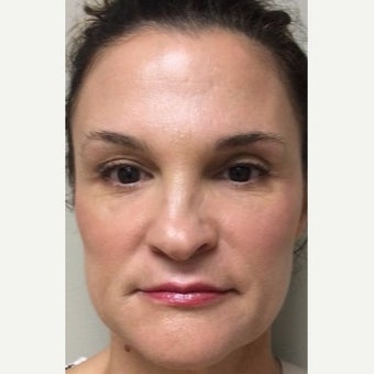45-54 year old woman treated with Juvederm after 2372874