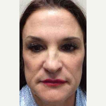 45-54 year old woman treated with Juvederm before 2372874