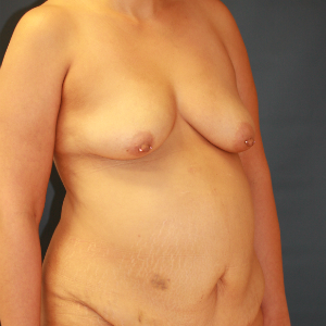 45-54 year old woman treated with Mommy Makeover before 3554452