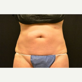 55-64 year old woman treated with CoolSculpting after 2153847