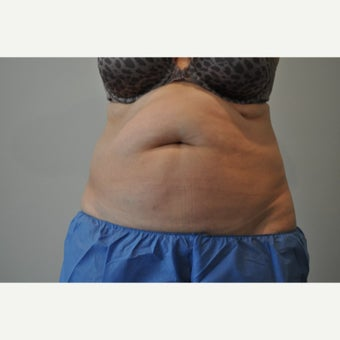 55-64 year old woman treated with CoolSculpting before 2153847