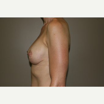 25-34 year old woman treated with Breast Lift with Implants after 3769589