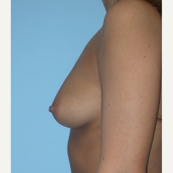 25 year old woman treated with a left 425 cc HP and a right 450 cc HP silicone Breast Augmentation before 3212897