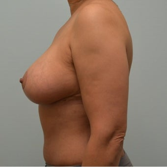 Liposuction, tummy tuck, and breast reduction on 50 year old Mommy Makeover patient after 2440757