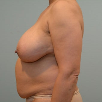 Liposuction, tummy tuck, and breast reduction on 50 year old Mommy Makeover patient before 2440757