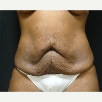 35-44 year old woman treated with Tummy Tuck before 2652698
