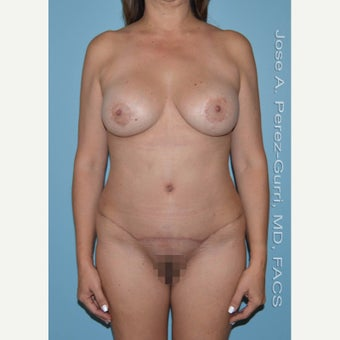 55-64 year old woman treated with Mommy Makeover after 1870061