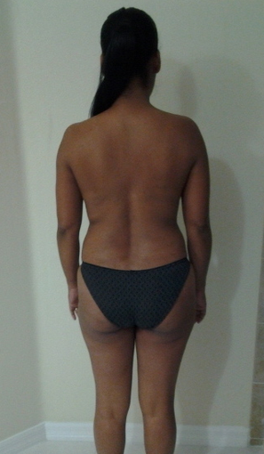 4 weeks after surgery. Liposuction + fat transfer to butt (Brazilian Butt Lift) before 979674