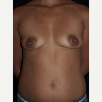 30 year old woman treated with Breast Lift with Implants before 3846535