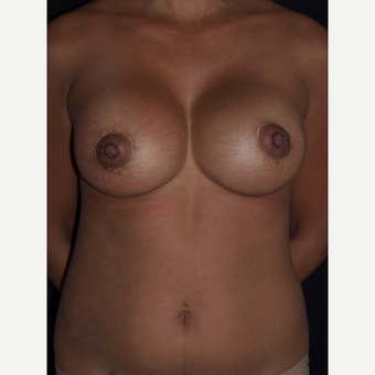 30 year old woman treated with Breast Lift with Implants after 3846535