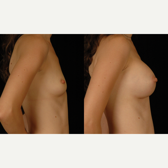 25-34 year old woman treated with Breast Augmentation after 3659749
