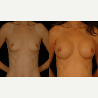 25-34 year old woman treated with Breast Augmentation before 3659749