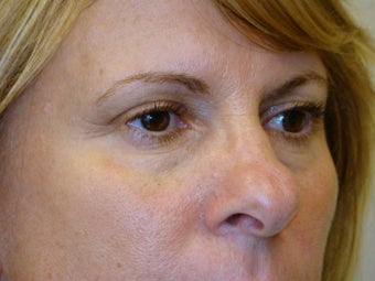 Active & Deep FX Laser Resurfacing before 104118