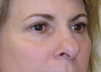 Active & Deep FX Laser Resurfacing after 104118