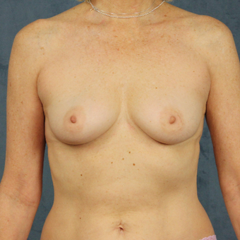 Natural breast augmentation with mommy makeover in patient over 50 before 3345278