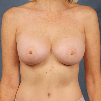 Natural breast augmentation with mommy makeover in patient over 50 after 3345278