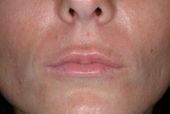 Juvederm Ultra before 86810