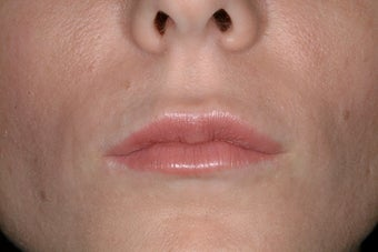 Juvederm Ultra after 86810