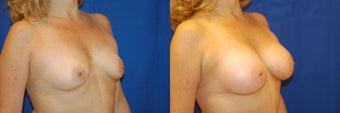 Breast augmentation with saline breast implants before 143258