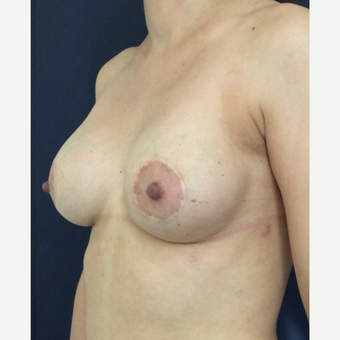 35-44 year old woman treated with Breast Implant Revision after 3836247