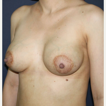 35-44 year old woman treated with Breast Implant Revision before 3836247