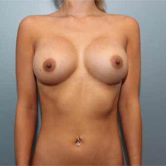 24 year old woman treated with 415cc Silicone Inspira Breast Implants after 3544447
