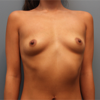 24 year old woman treated with 415cc Silicone Inspira Breast Implants before 3544447