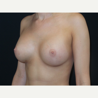 18-24 year old woman treated with Breast Implants after 3651638
