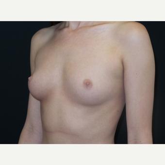 18-24 year old woman treated with Breast Implants before 3651638