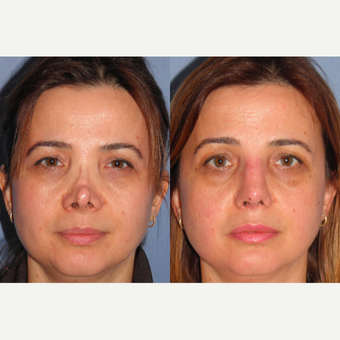 35-44 year old woman treated with Revision Rhinoplasty before 3521533