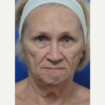 Woman treated with Contoura before 3439292