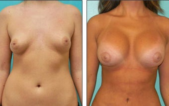 Breast Reconstruction before 1115968