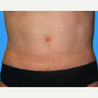 Tummy Tuck after 3813534