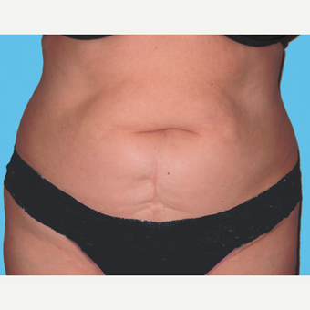 Tummy Tuck before 3813534
