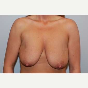 35-44 year old woman treated with Breast Lift before 3129719
