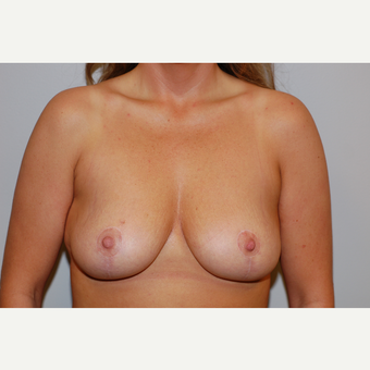 35-44 year old woman treated with Breast Lift after 3129719